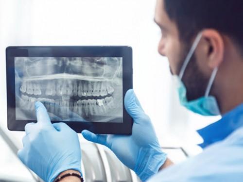 Negligência em tratamento odontológico: entenda as implicações jurídicas
